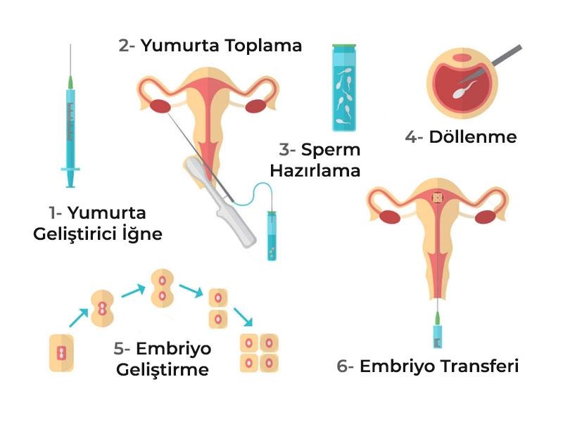 Tüp Bebek Tedavi Aşamaları