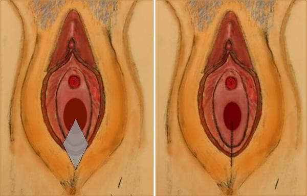vajina daraltma antalya